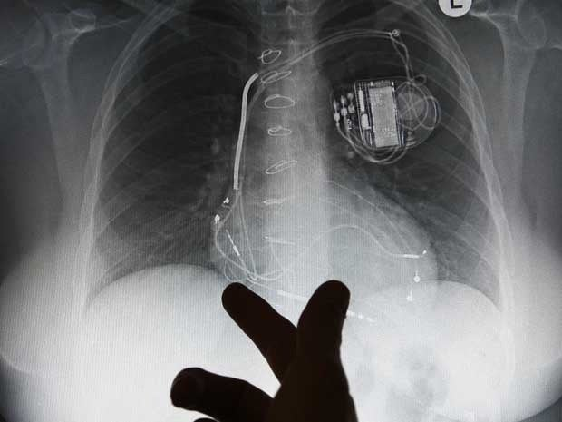 An X-ray picture on a monitor showing an implanted pacemaker
