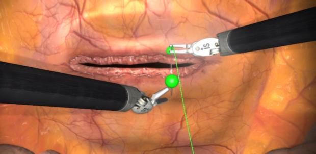 suture simulation Mimic