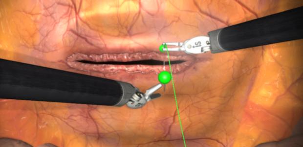 suture simulation  download