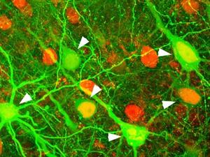 Carnegie Mellon University Sandra Kuhlman brain cells