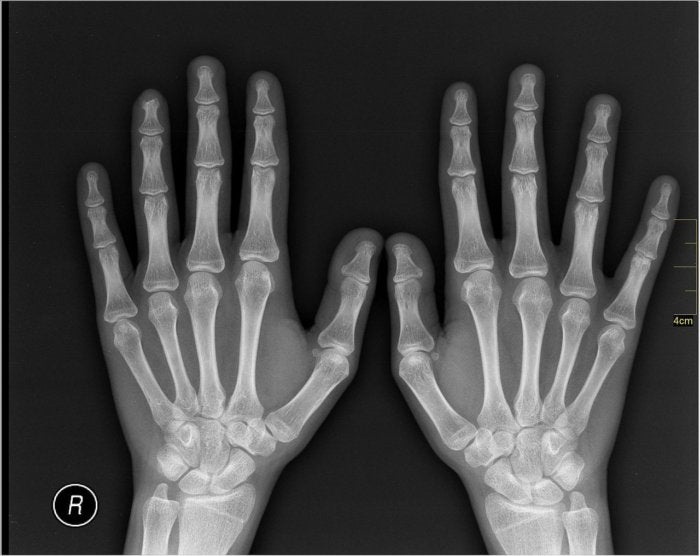 medical x ray imaging hands