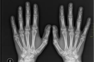 X-ray your SaaS apps to reveal hidden security vulnerabilities