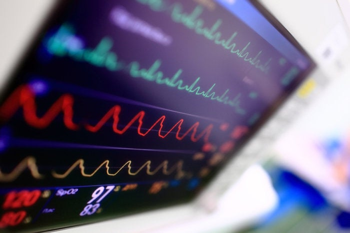 heart monitor rate ekg hospital medical