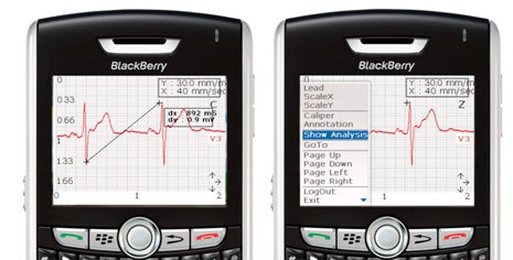 mVisum for BlackBerry EKG Screen Shots