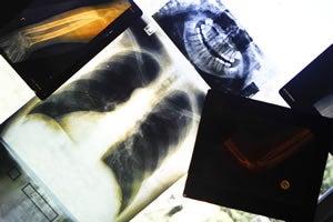 Biosurveillance plan allows feds to track Americans' health