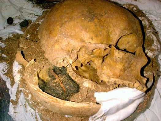human skull fragments